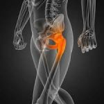 Shock decision about having a total hip replacement at 50!  5 things that worried me. (Part 2)